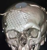 В Днепре врачи провели уникальную операцию на голове раненого бойца АТО (фото)